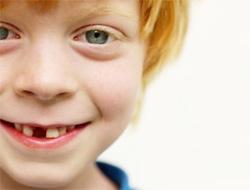 bambino-sorriso