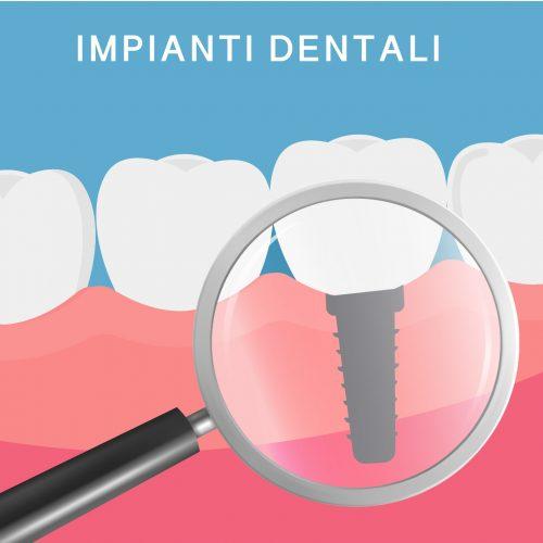 L'implantologia dentale