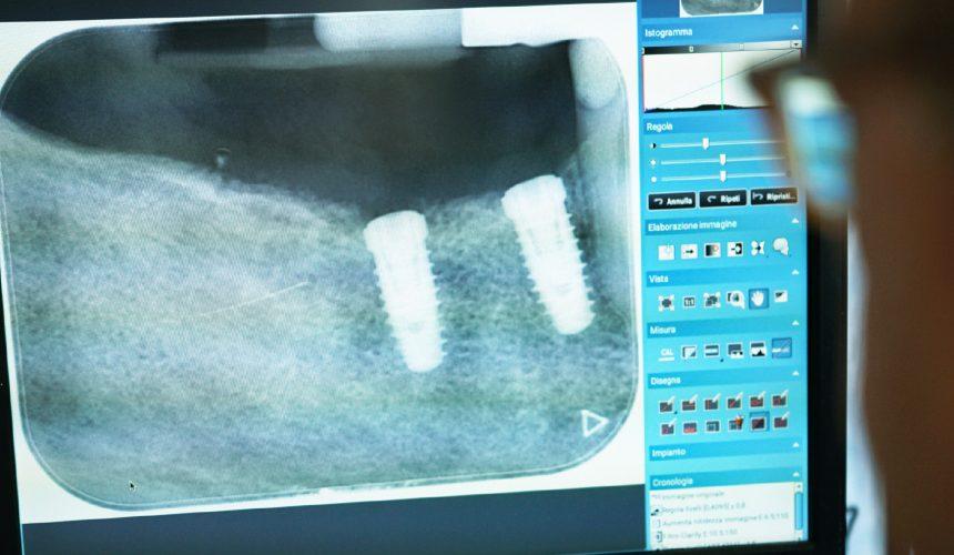 Implantologia per tutti