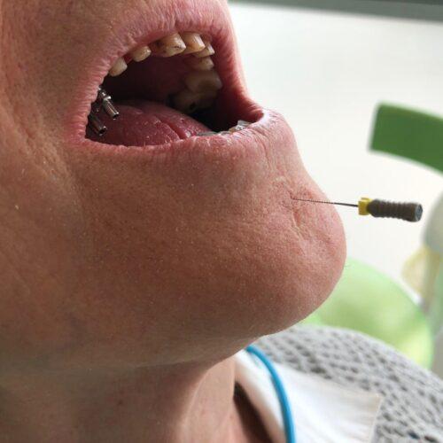 Il riflesso di intolleranza degli oggetti in bocca | gag reflex